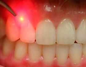 laser-terapia-image